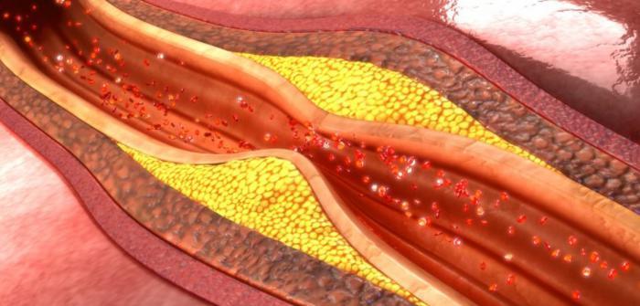 infusiones para el colesterol