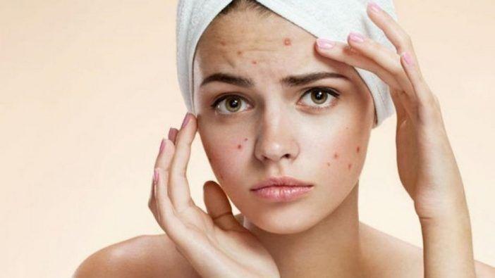 Aceite esencial de ajo para eliminar el acne