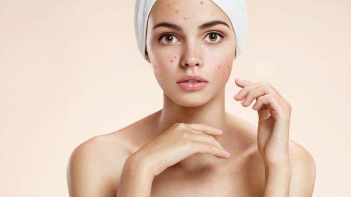 aceite cardamomo para acne